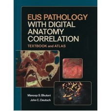 Eus Pathology With Digital Anatomy Correlation (English) 1 Har/Cdr Edition